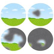 thumbnail_eye_ryokunaisyou_shikai%e7%b7%91%e5%86%85%e9%9a%9c%e3%81%ae%e8%a6%96%e9%87%8e